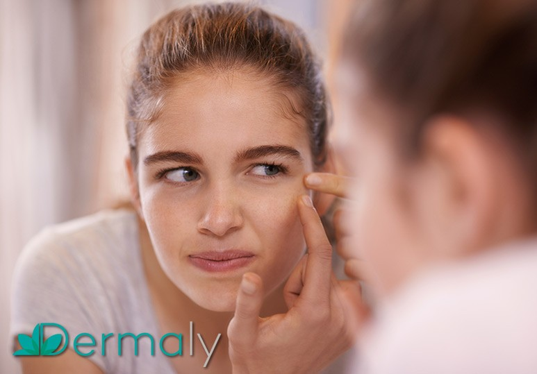 Acne Skin Treatment Vancouver