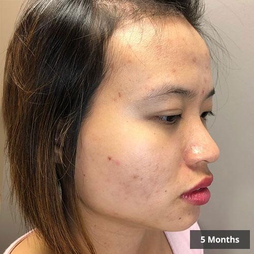 Vancouver Acne Treatment