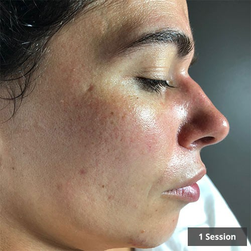 Vancouver Facial redness Treatment