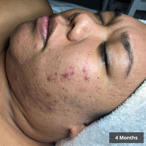 Dermaly - Acne Treatment Before and After Images Vancouver