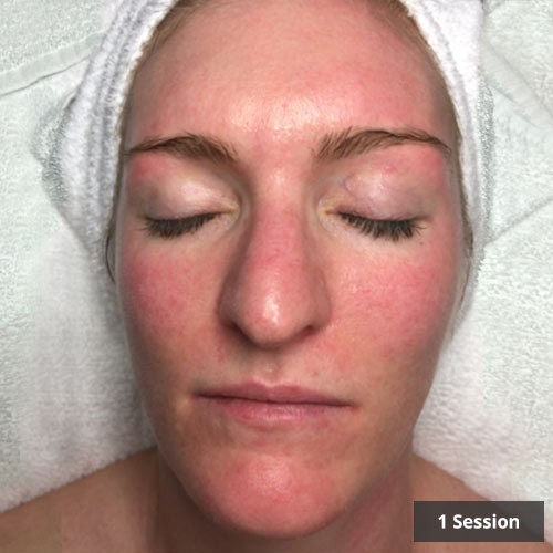 Dermaly - Facial Redness Treatment Vancouver