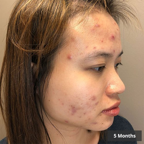 Vancouver Acne Treatment
